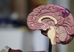 Study: mild brain stimulation to investigate motivation preview image